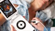 Какие УЗИ аппараты сегодня используются в медучреждениях?
