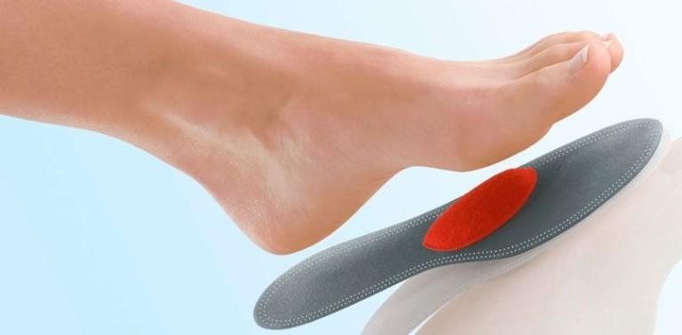 Какие стельки необходимы при поперечном плоскостопии?